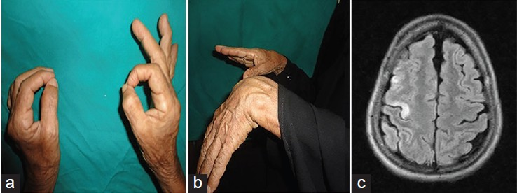 temporal arteritis biopsy after steroids