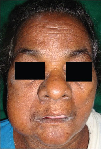 Figure 1: Clinical photograph of the patient showing swelling in relation to the lower third of the face on the right side