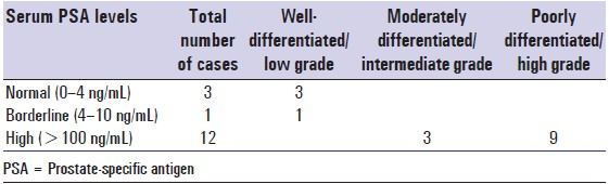 Table 1: Relation between grade of tumor and serum PSA level
