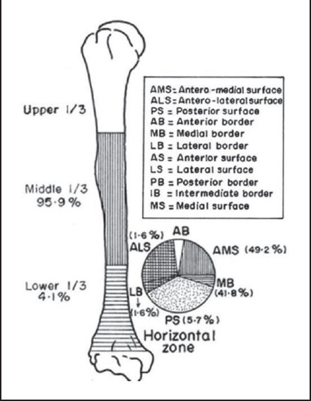 Figure 3: Schematic diagram showing location of nutrient foramen in humeri of adult human bones in vertical zone and horizontal zones