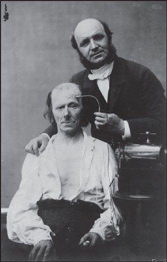 Figure 3: Duchenne, the founder of modern electrotherapy, faradizing the frontalis muscle (1847)