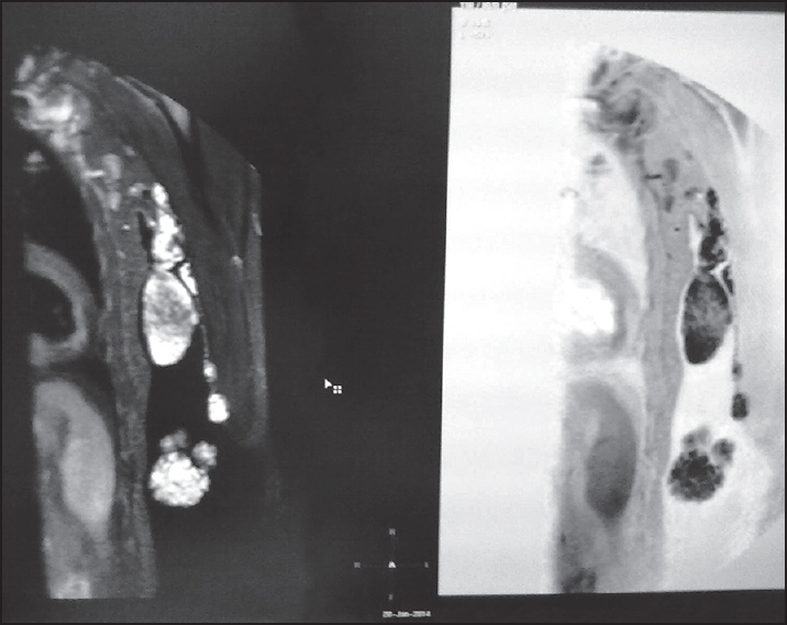 Figure 3: MRI of upper limbs, axilla (T1 weighted) showed polypoidal mass with heterogeneous hypo to intermediate signal with no flow voids. Axial T2 weighted MR image showed high signal intensity mass