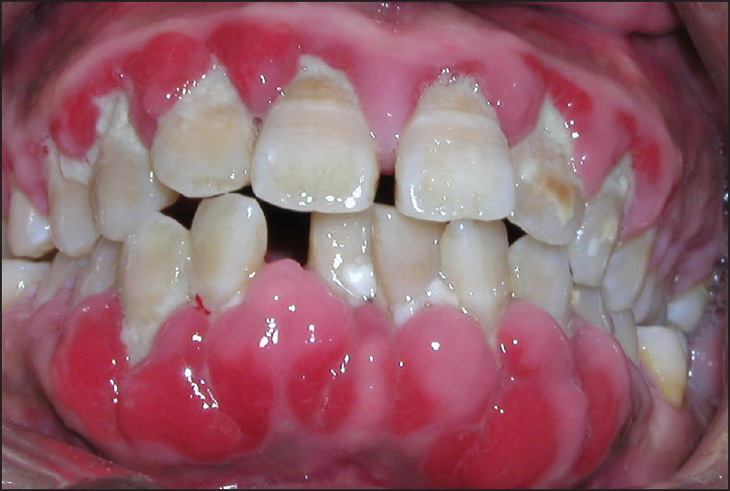 gum disease periodontitis 171 prestige dental care health management considerations in patients with 643