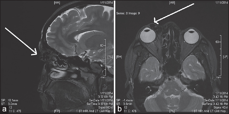 A rare case of arteriovenous malformation of the upper