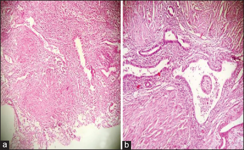 Tuberculosis in adenomyosis: Common conditions with rare