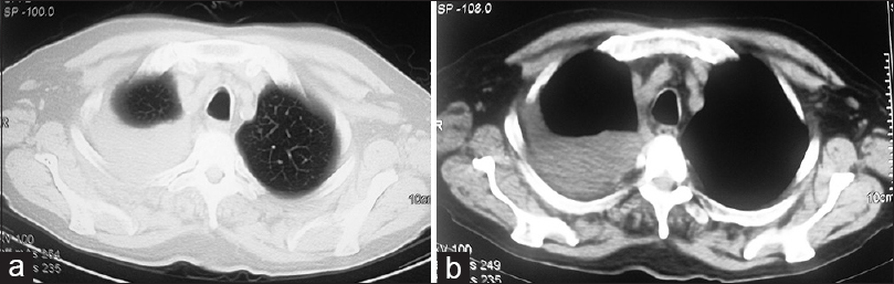 Figure 3: (a and b) Computerized tomography of thorax showing massive right pleural effusion.