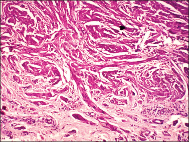 Figure 2: Photomicrograph showing smooth muscle cells with oval nuclei and bipolar cytoplasm with varying amount of admixed collagen (H and E, ×400)