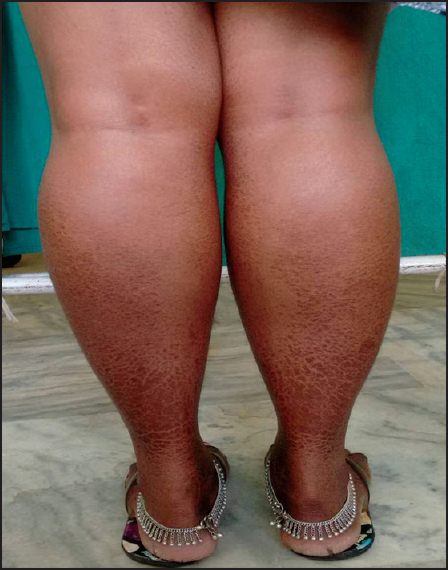 Calf muscle hypertrophy in late onset pompe\'s disease Menon M S ...