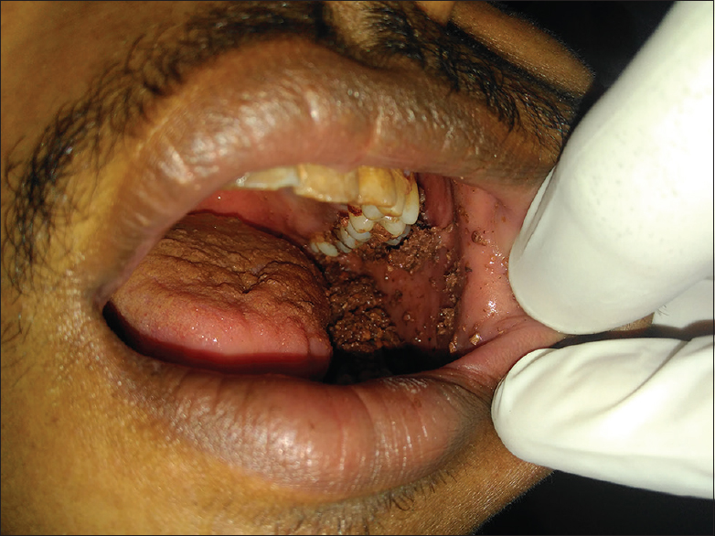 Figure 1: Mud in the oral cavity