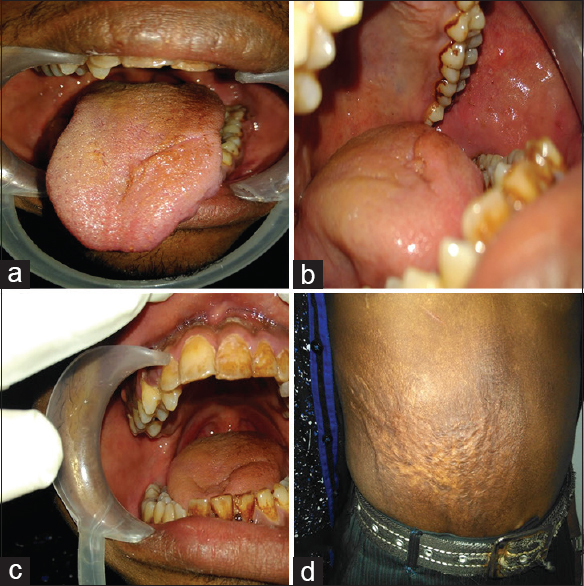 Figure 2: (a) Traumatic fissure on the dorsal surface of the anterior part of the tongue, (b) small abrasions on the left buccal mucosa, (c) hard tissue revealed generalized stains, attrition, abrasion, (d) burn marks on abdomen
