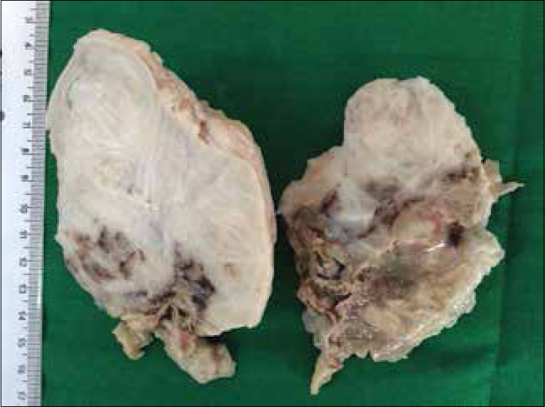 Figure 1: Variegated appearance on gross examination