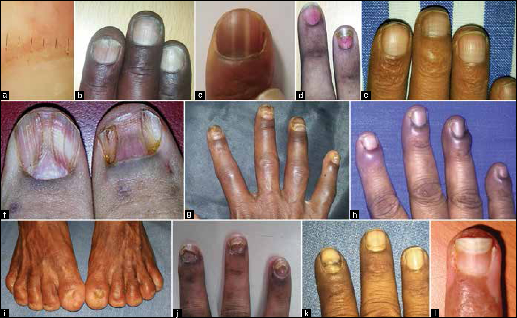 Nail evaluation in internal diseases: An indispensable exercise ...