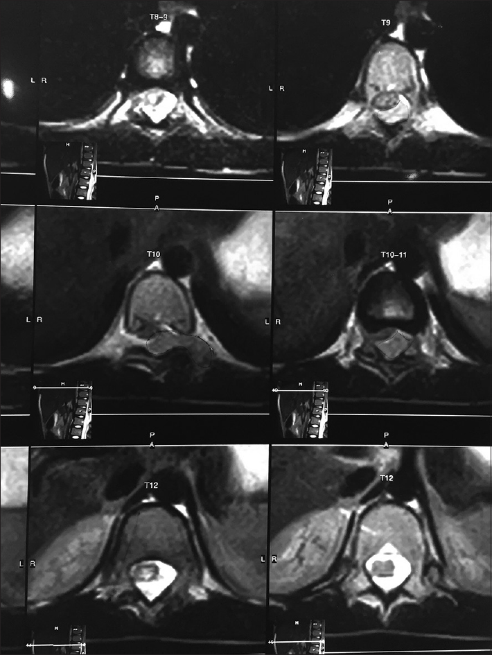 Figure 1: Magnetic resonance imaging showing lesion of T10 vertebra