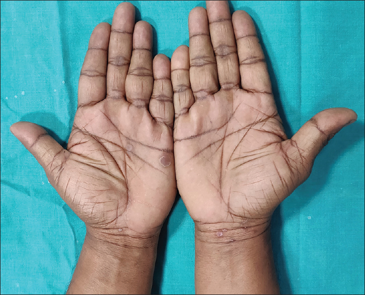 Figure 3: Papulosquamous lesions of secondary syphilis on palm and wrist