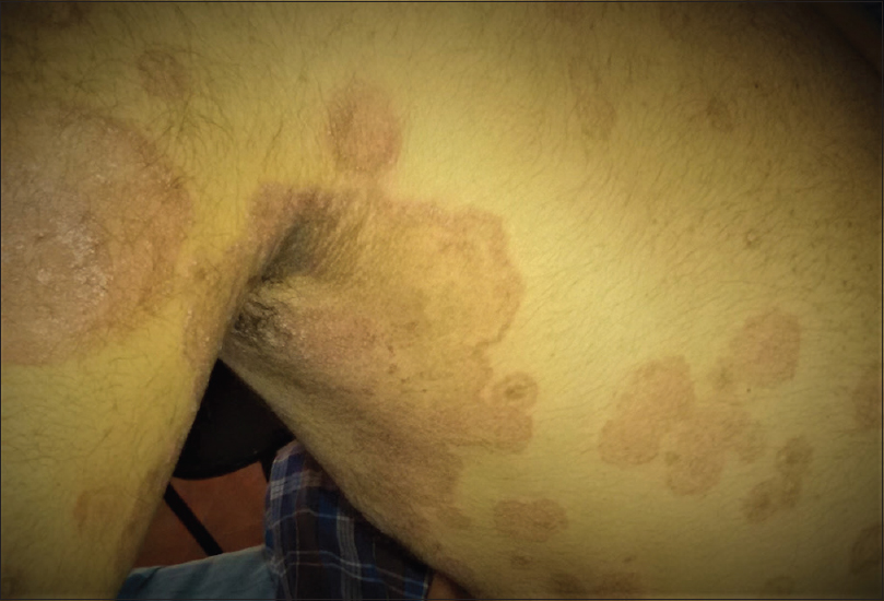 Figure 1: Tinea corporis; annular and polycyclic erythematous scaly plaques with active borders