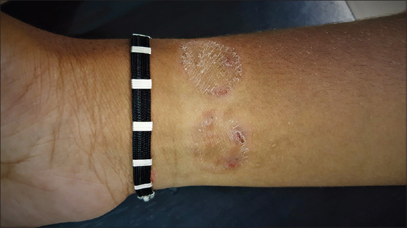 Figure 2: Tinea corporis occurring at the site of the wrist band
