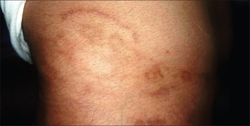 Epidemic of difficult-to-treat tinea in India: Current