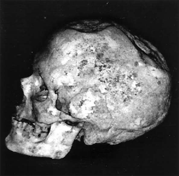 Figure 1: Photograph of trephinated skull found at Ensisheim burial site in France and dated to 5100 BC (Courtesy of Kurt W Alt; Source: Feldman RP, Goodrich JT. Psychosurgery: A historical Overview. Neurosurgery 2001;48:647-59)