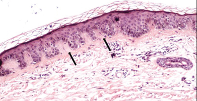 Figure 4: Photomicrograph showing reddish-orange deposits (arrows) in the papillary dermis (Congo red stain, ×100)