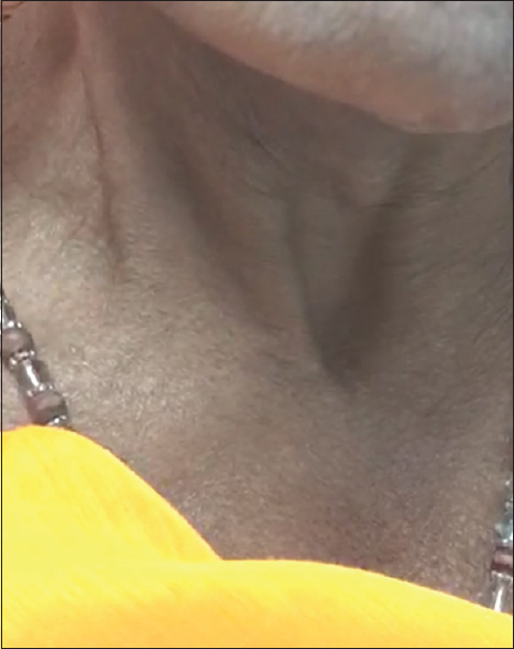 Figure 1: No swelling appreciated in the neck at rest