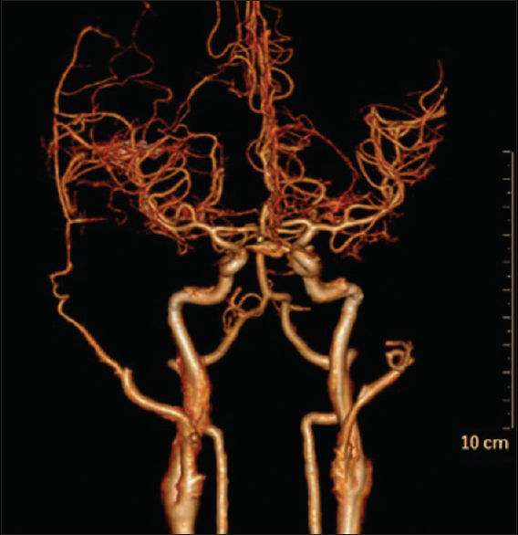 Figure 7:Postoperative angiogram following a direct revascularization showing a patent superficial temporal artery to middle cerebral artery anastomosis