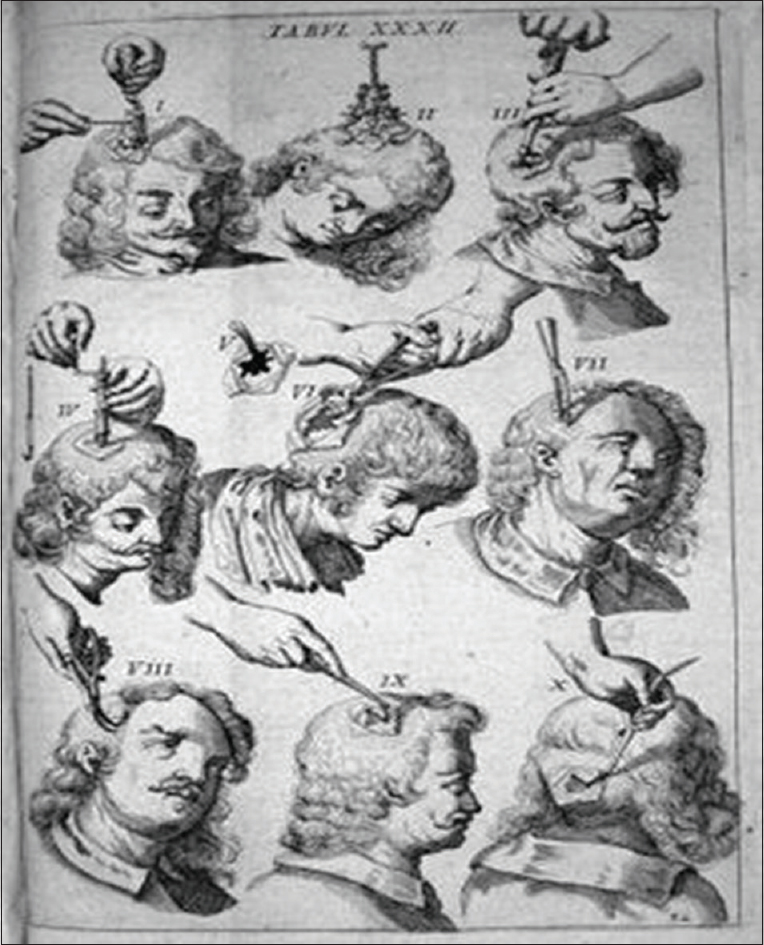 Figure 1: Johannes Scultetus (1655) showing how trepanation was performed  (Source: Costandi M. An illustrated history of trepanation. 2007;16(7):7641)