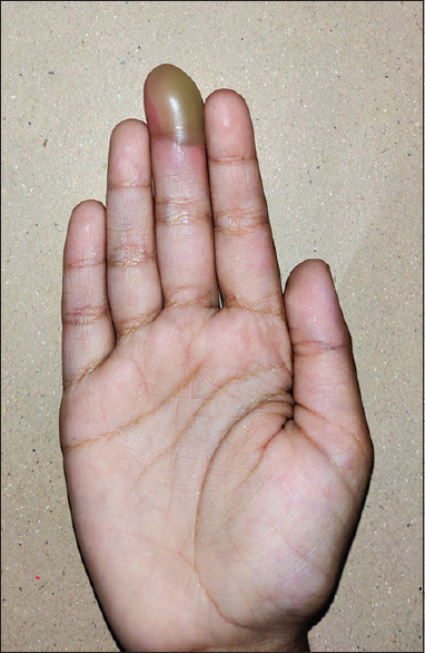 Figure 1: Solitary bulla over the volar aspect of the distal phalanx of the right middle finger