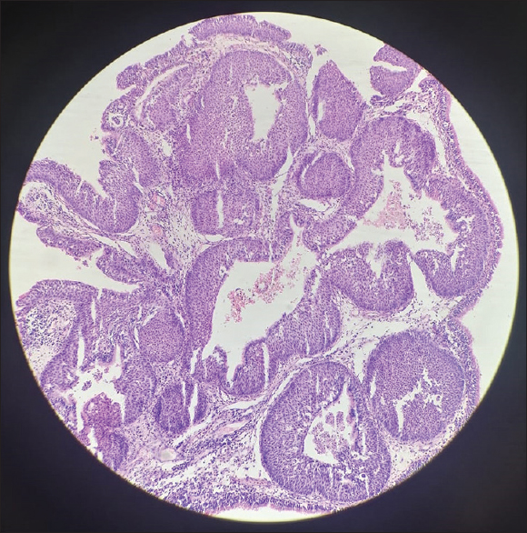 Figure 5: Histopathological slide showing inverted papilloma