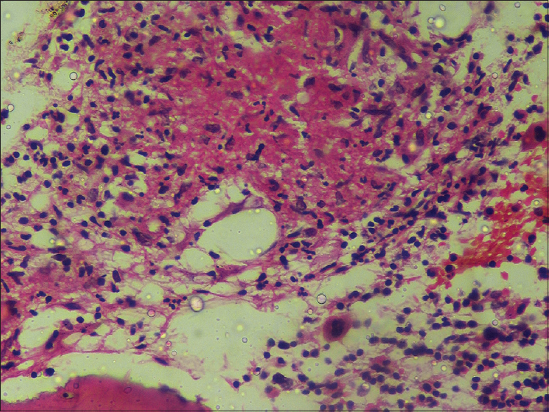 Figure 3: Photomicrograph showing granuloma in bone marrow biopsy (H and E, ×400)