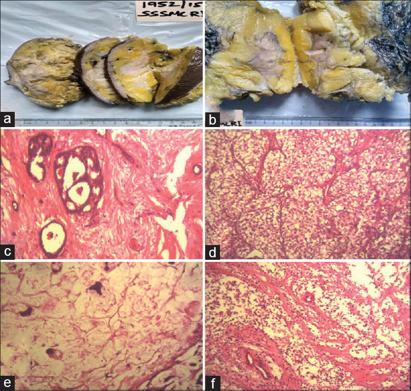 Figure 1: Photograph of carcinoma breast showing (a) infiltrating growth pattern, (b) irregular grey-white solid tumour, H and E staining of (c) infiltrating ductal carcinoma-adenoid cystic pattern (×10), (d) mucinous carcinoma-hypocellularity with abundant mucin (×40), (e) infiltrating ductal carcinoma-clear cell pattern (×40) and (f) infiltrating ductal carcinoma-small cell variant (×40)